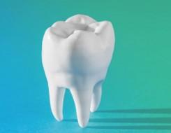Zahnersatz durch Implantologie – Zeigen Sie Ihr schönstes Lächeln  | Kassel